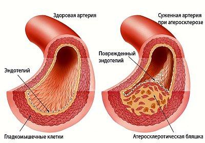 Что такое атеросклероза коронарных артерий