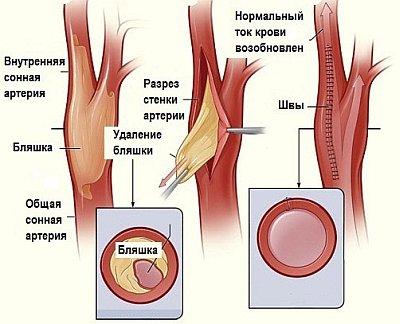 Современное лечение атеросклероза с