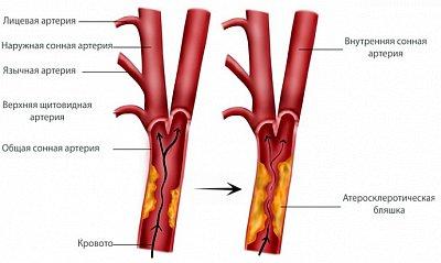 Стенозирующий атеросклероз брахиоцефальных артерий лечение